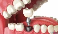 لا تؤجل علاج الأسنان الخاص بك.