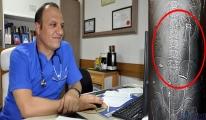 Hastanede, vücudunda şişe olduğu ortaya çıktı
