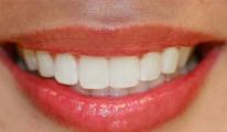 Kanserli Hastalarda Dişlere Dikkat