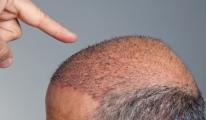 Saç ekimi Sektörün sonunu getirebilir!