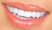 SGK'dan müjde! Artık estetik diş tedavileri de karşılanıyor