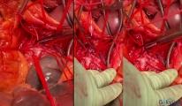 video SMA atar damarını tıkayan kan pıhtısı!