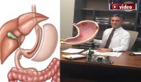 video Tüp Mide Ameliyatını Kimler Olabilir?