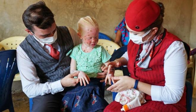 THY, albino hastası çocukların yaralarına merhem oldu#video