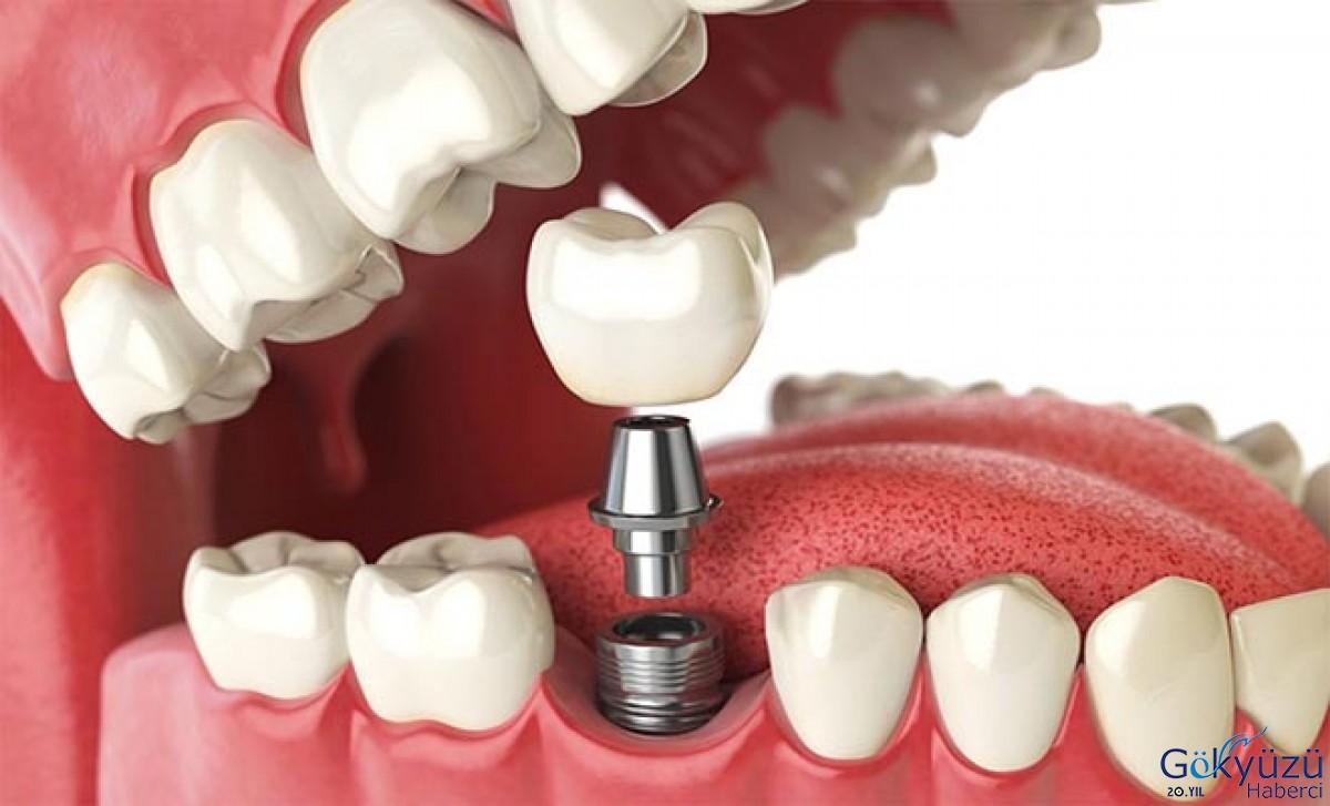 Non rimandare il trattamento odontoiatrico.